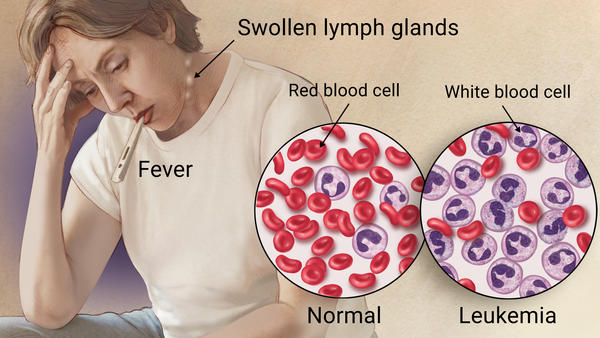 leukemia Leukemia is a group of blood-related cancers that affect white blood cell replication in the bone marrow the abnormal cells crowd out the healthy cells, which affects their ability to fight infection and impedes the production of blood cells.