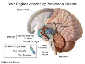 3-300x225 Living with Parkinson's Disease