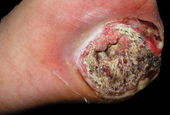 Epitheloid-Sarcoma-Image Sarcoma - A Life Threatening Cancer