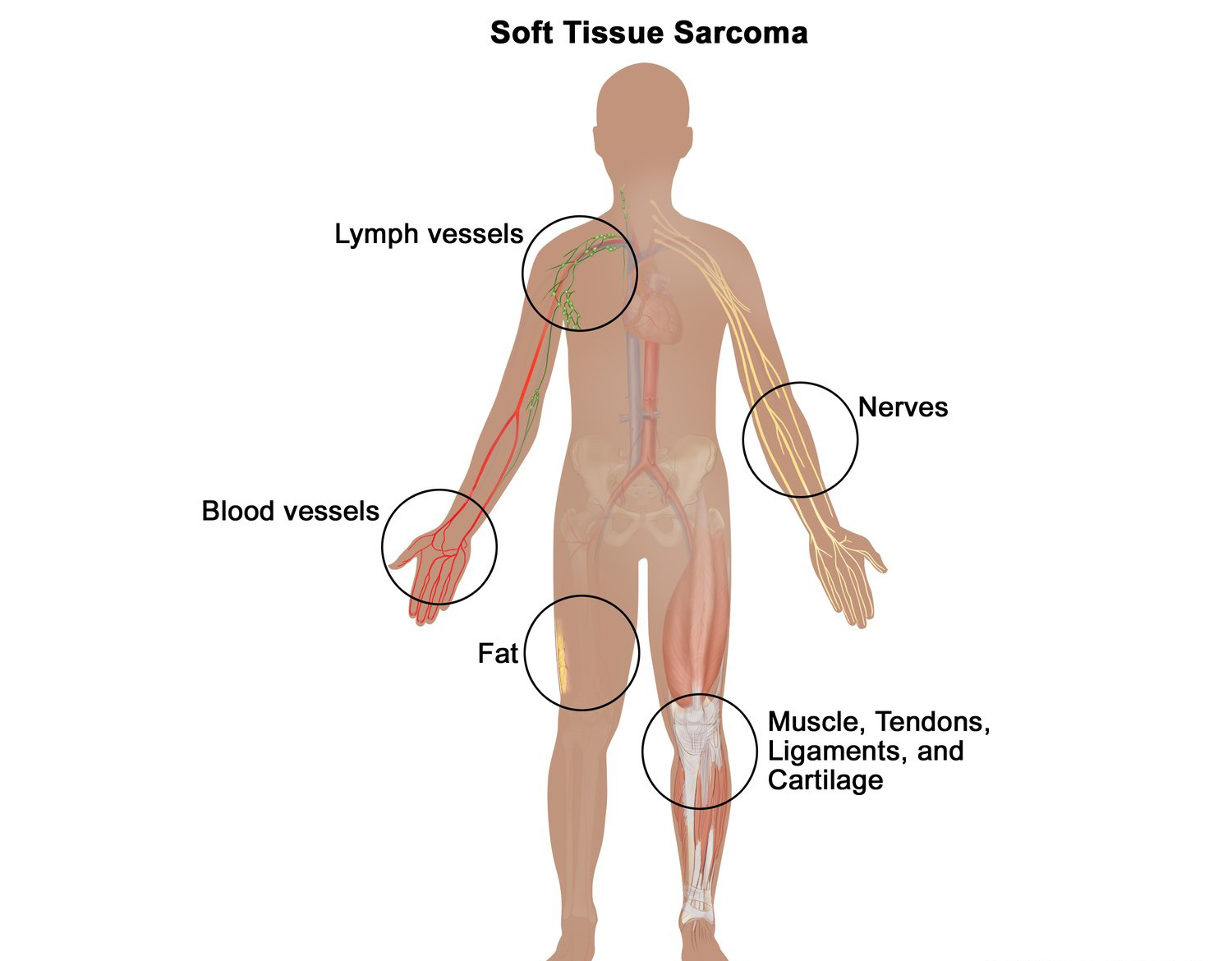 Sarcoma – A Life Threatening Cancer